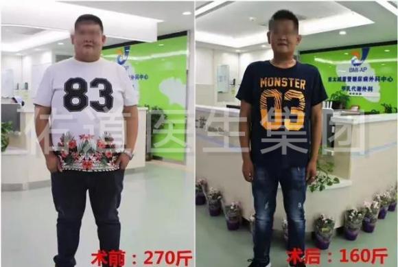 减重手术半年瘦100斤,一个非常有效的将军肚减肥方法_无器械健身